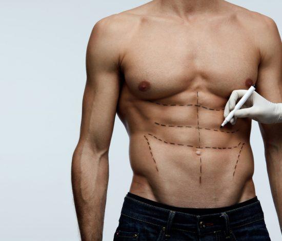 chirurgia corpo